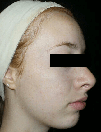 chemical peel before VA