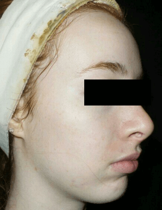 chemical peel after VA