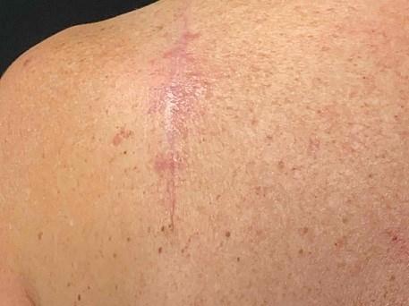 Skin Cancer before VA