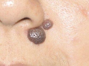 Mole Removal before VA