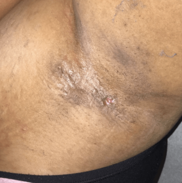 Hidradenitis excision after VA