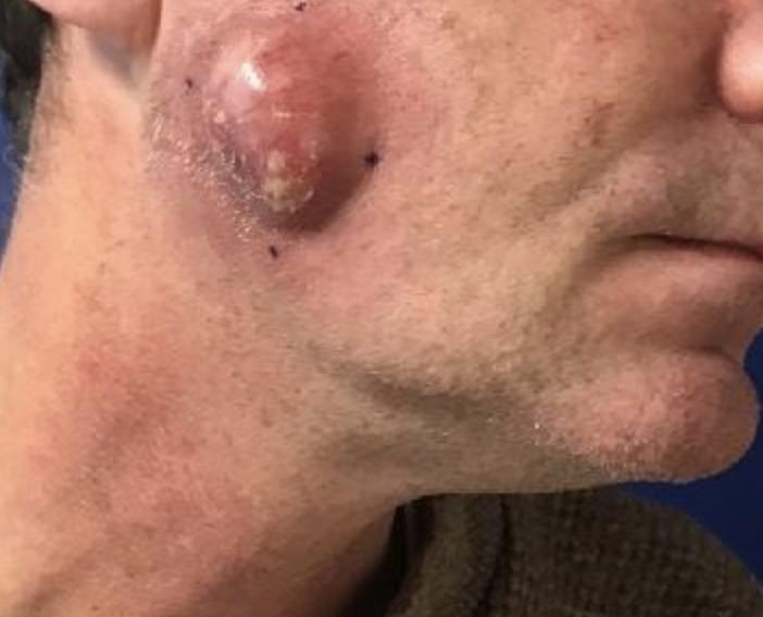 Cyst – Sebaceous removal before VA