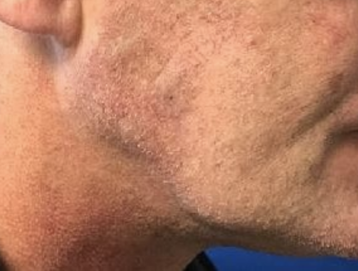 Cyst – Sebaceous removal after VA
