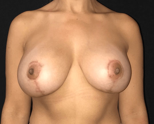 Breast augmentation before and after image.