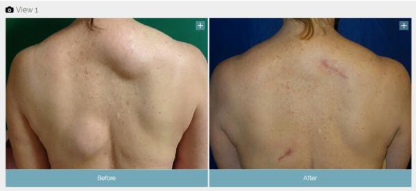 lipoma before and after VA